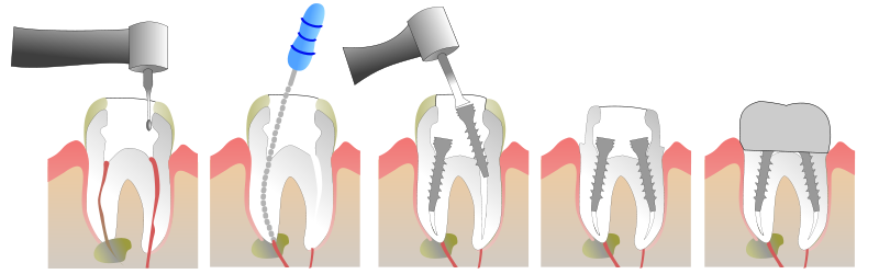 colle dentaire pour couronne